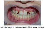 протезирование без обточки зубов