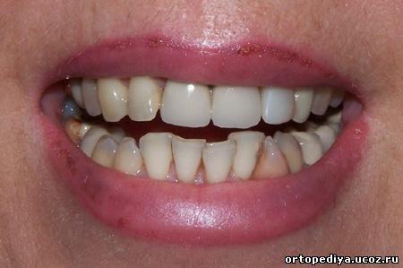 посмішка до лікування