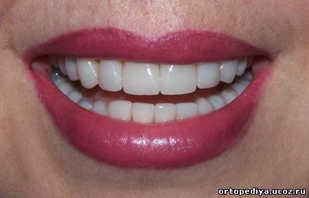 посмішка після лікування