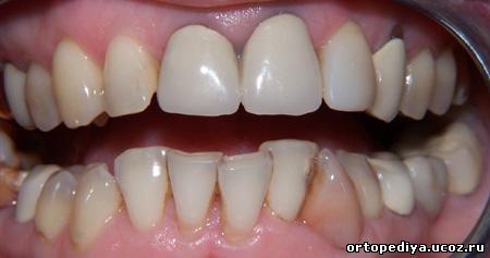 вигляд зубів до лікування